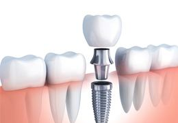 3D illustration of dental implant
