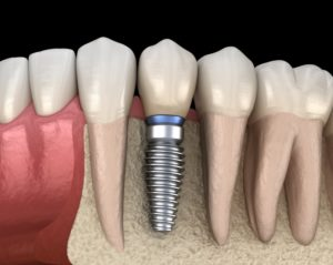 Dental implant in jawbone